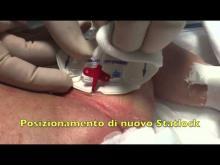 Embedded thumbnail for GAVeCeLT - Medicazione accesso venoso femorale in neonato