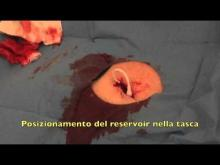 Embedded thumbnail for GAVeCeLT - inserzione di port venoso: utilizzo di colla in cianoacrilato