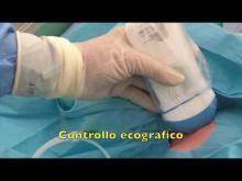 Embedded thumbnail for GAVeCeLT - Venipuntura centrale in lattante con sonda ecografica wireless portatile