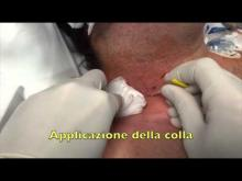 Embedded thumbnail for Uso della colla istoacrilica durante la rimozione di un CVC in vena giugulare interna