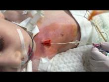 Embedded thumbnail for GAVeCeLT - Medicazione CICC pediatrico fissato con SAS